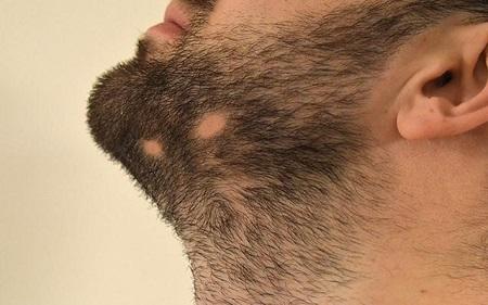 علت ریزش ریش صورت, علت ریزش ریش و سبیل, درمان ریزش ریش و سبیل در آقایان ,چرا ریزش ریش و سبیل در آقایان اتفاق می افتد؟,men beard loss,