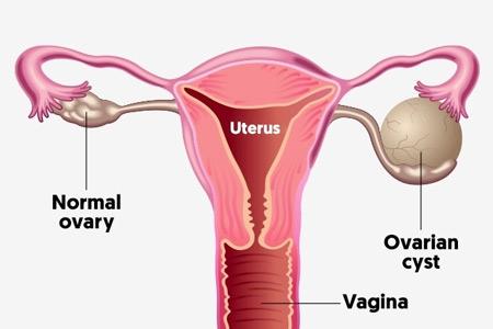 درمان کیست تخمدان با داروهای گیاهی,دفع کیست تخمدان با داروی گیاهی,درمان گیاهی کیست تخمدان,درمان کیست تخمدان ,خوردنی های شفابخش برای درمان کیست تخمدان,سرطان تخمدان و کیست تخمدان,ovarian cysts,